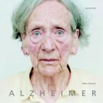 El Alzheimer se desnuda ante la cámara