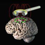 Un estudio apunta terapias magnéticas para enfermos de Alzheimer