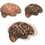 Nuevo test en sangre detectaría el Alzheimer.