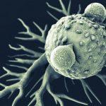 Anticiparse al Alzheimer (1era parte)