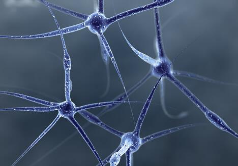 Diagnosticar Precózmente Alzheimer