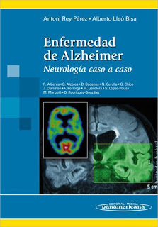 Alzheimer: Neurología caso a caso (Libro)