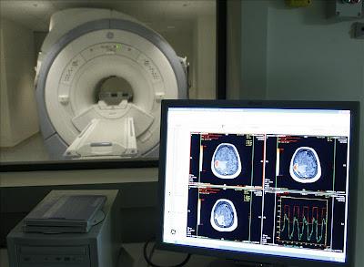 EE.UU. aumenta financiamiento para investigar el Alzheimer