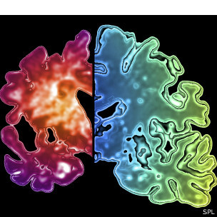 Comparación del tejido de un cerebro con demencia y uno normal.