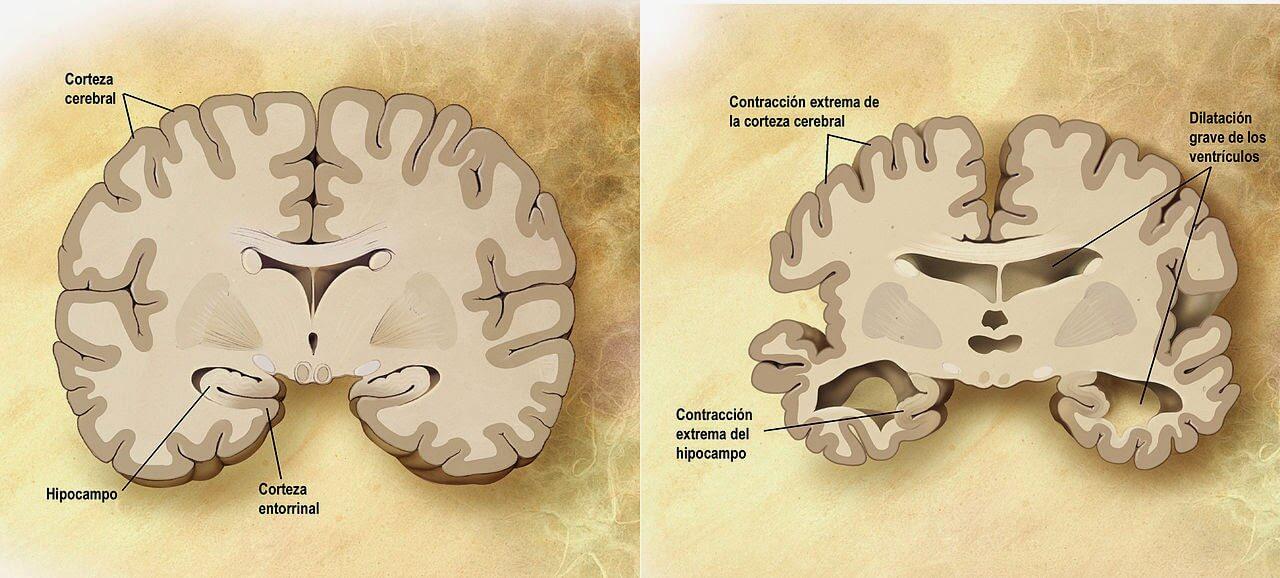 """Comparación anatómica entre un cerebro normal (izquierda) y otro con la enfermedad de Alzheimer (derecha) (Fuente: Wikipedia  Autor: ADEAR: """"Alzheimer's Disease Education and Referral Center, a service of the National Institute on Aging."""")"""