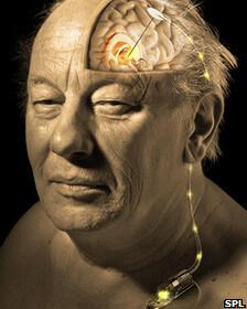 La estimulación cerebral profunda es la aplicación directa de electricidad a ciertos centros del cerebro.
