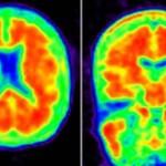 Escáner en el que se pueden apreciar los amiloides, que identifican la enfermedad
