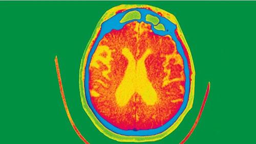 cerebro--0987654321