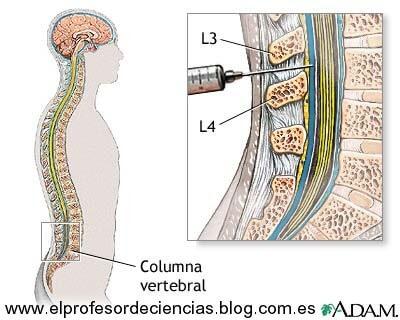 El líquido cefalorraquídeo de las personas que tienen problemas leves de memoria puede ayudar a identificar a los que luego desarrollarán la enfermedad de Alzheimer.