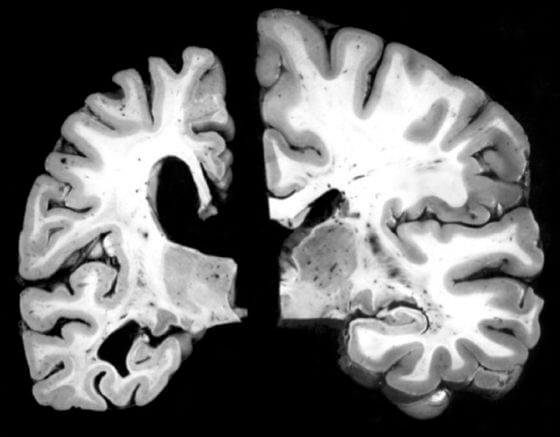 Comparación del cerebro de una persona con alzhéimer, a la izquierda, y otra sana / WASHINGTON UNIVERSITY