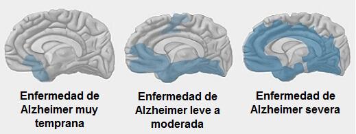 Hablando Claro: Hablando del Alzheimer.