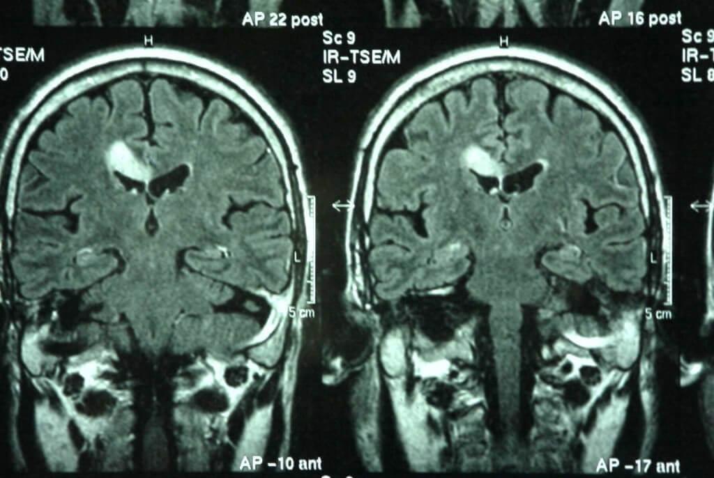 Degeneración lobular frontotemporal resonancia-magnetica-471148_10151333310513578_199559102_1