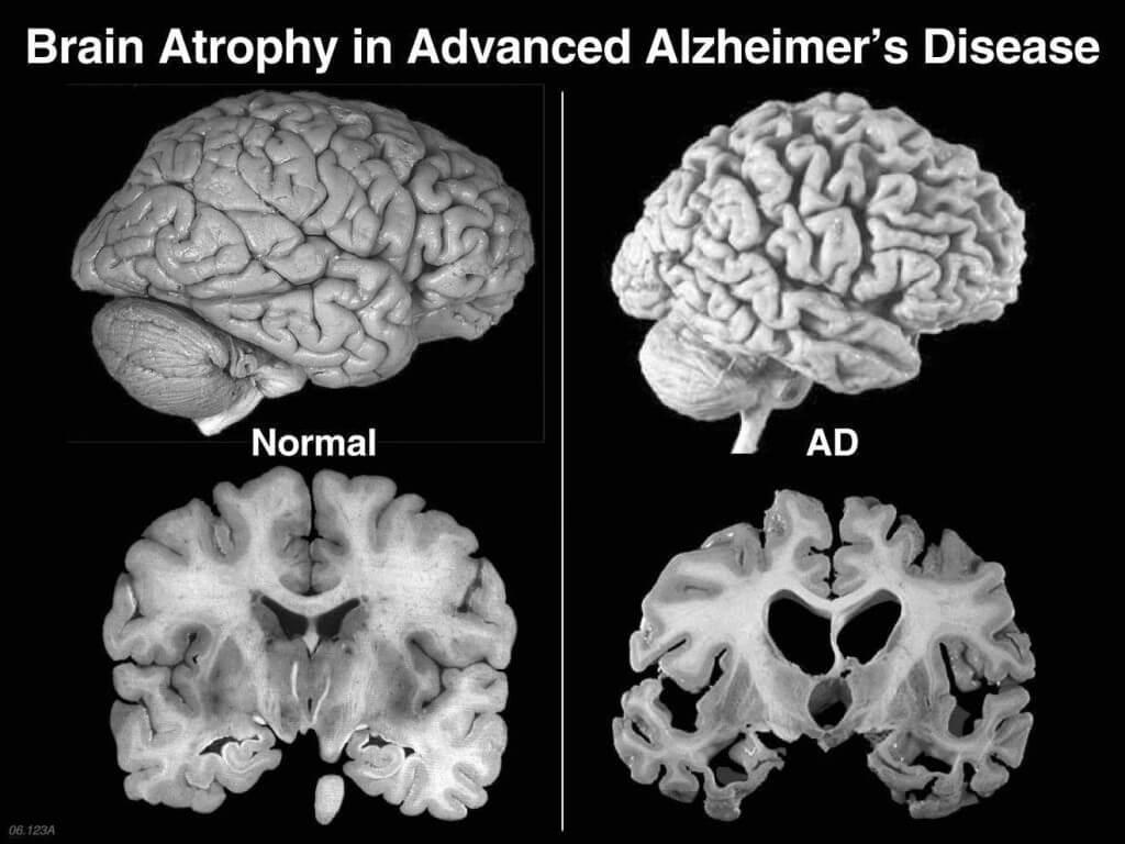 10 datos sobre la demencia según la OMS