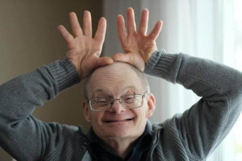 Alzheimer y Síndrome de Down