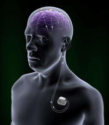 ECP: Estimulación Cerebral Profunda servirá para Alzheimer? Imagen: ALZ Forum