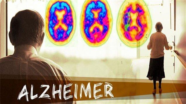 Algo que los asíduos de este blog sabrán de sobra es que, el Alzheimer es una enfermedad degenerativa, progresiva e irreversible hasta el día de hoy, que daña el pensamiento, la memoria, el comportamiento y la comunicación entre otras. Y que no se trata de una etapa más del envejecimiento.