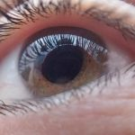 Glaucoma y Enfermedad de Alzheimer