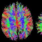 Cuáles son los Síntomas del Alzheimer Avanzado (Primera parte)