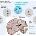 ASC la proteína clave en el progreso del Alzheimer